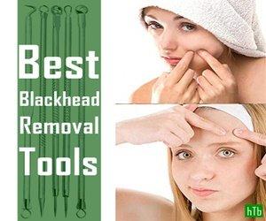 blackhead removal tools